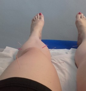 Acupuncture 3rd session