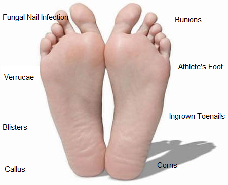 common foot complaints