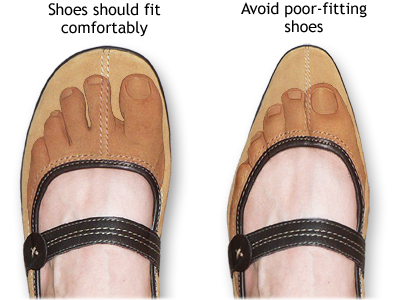 correct fitting shoes