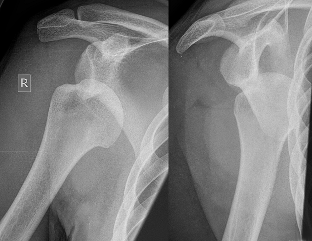 Case study – shoulder injury treatment: strength is nothing without stability