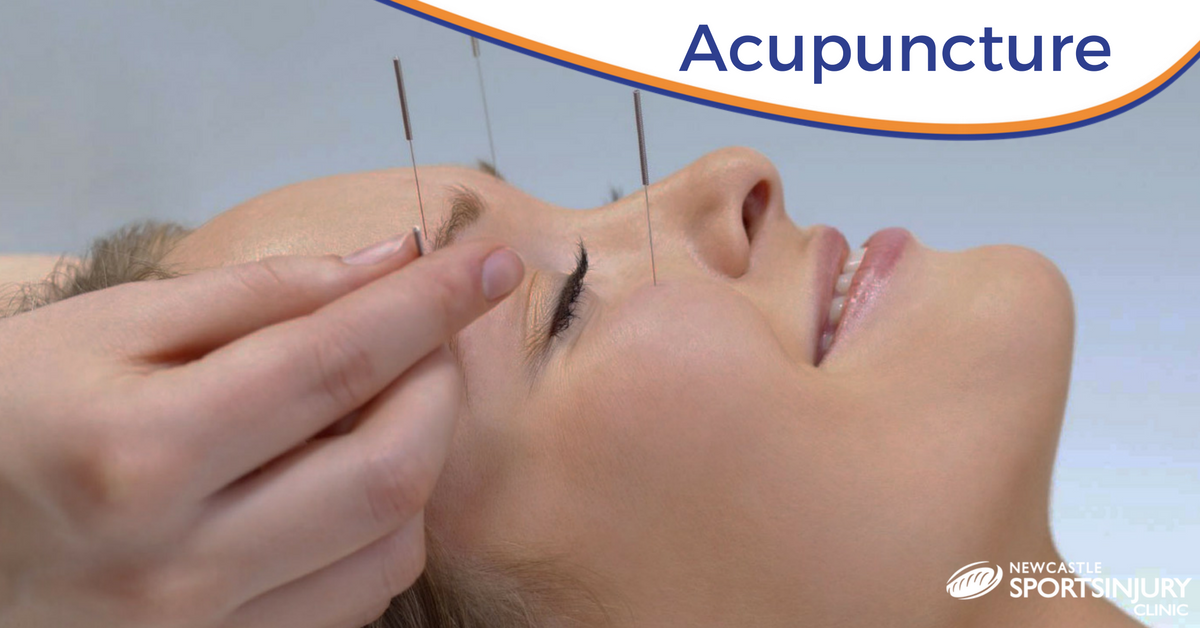 Acupuncture – A Patient's Perspective – Initial Consultation