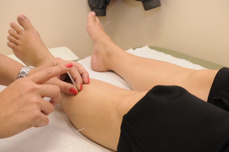 Can acupuncture help rheumatoid arthritis?